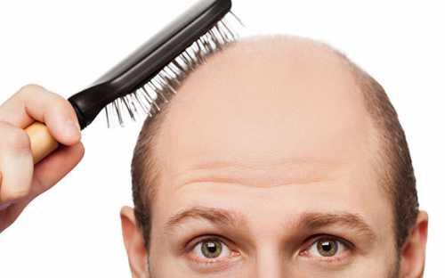 выпадение волос: причины и лечение у женщин, источники проблемы